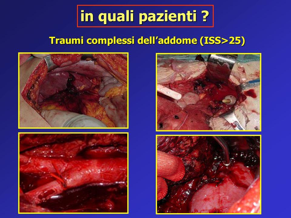 Traumi complessi dell'addome (ISS>25) in quali pazienti ?