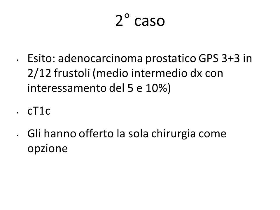 Esito: adenocarcinoma prostatico GPS 3+3 in 2/12 frustoli (medio intermedio dx con interessamento del 5 e 10%) cT1c Gli hanno offerto la sola chirurgia come opzione 2° caso