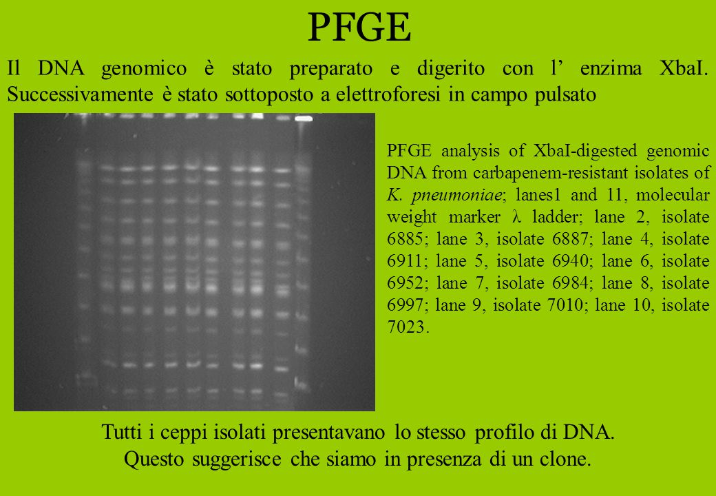 PFGE PFGE analysis of XbaI-digested genomic DNA from carbapenem-resistant isolates of K.