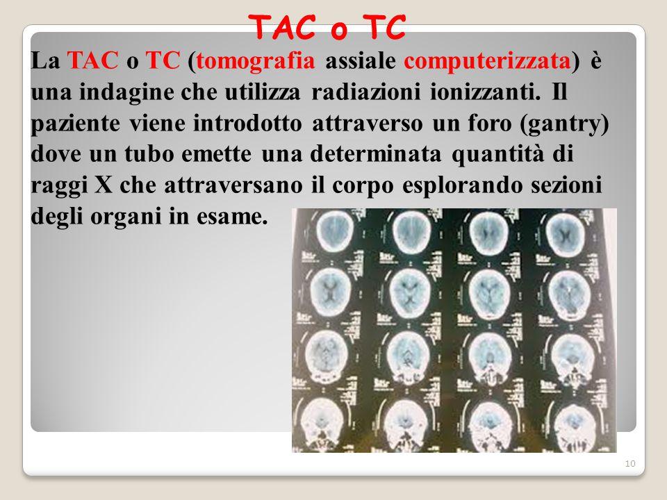 TAC o TC 10 La TAC o TC (tomografia assiale computerizzata) è una indagine che utilizza radiazioni ionizzanti. Il paziente viene introdotto attraverso