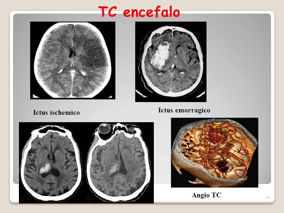 TC encefalo 11 Ictus ischemico Ictus emorragico Angio TC