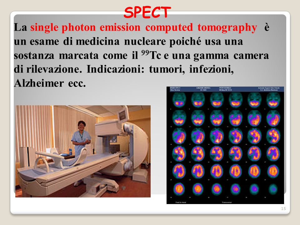 SPECT 15 La single photon emission computed tomography è un esame di medicina nucleare poiché usa una sostanza marcata come il 99 Tc e una gamma camer