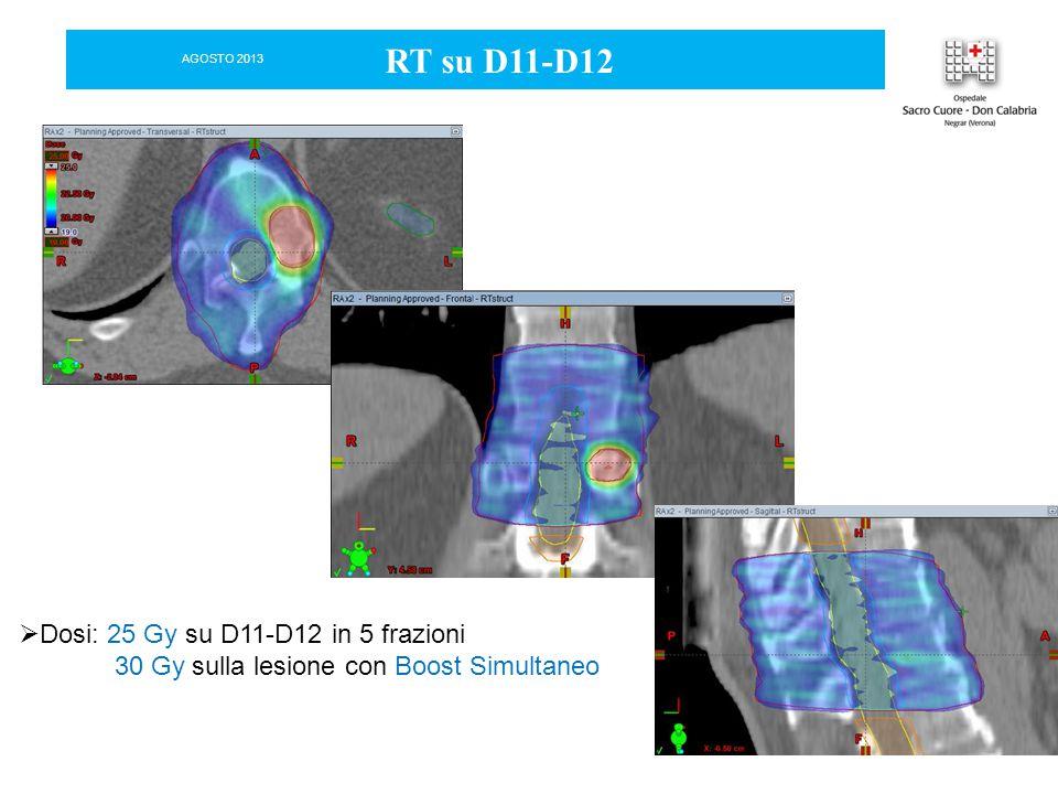 RT su D11-D12  Dosi: 25 Gy su D11-D12 in 5 frazioni 30 Gy sulla lesione con Boost Simultaneo AGOSTO 2013