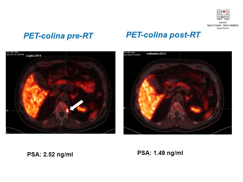 PET-colina post-RT PET-colina pre-RT PSA: 2.52 ng/ml PSA: 1.49 ng/ml Luglio 2014 settembre 2014