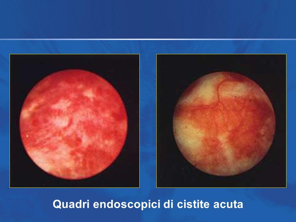 Quadri endoscopici di cistite acuta