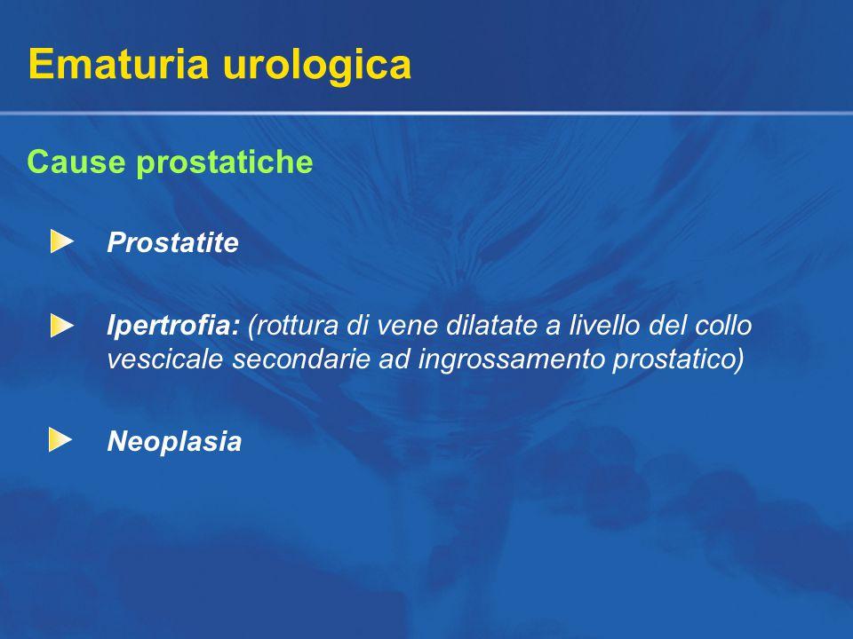 Ematuria urologica Cause prostatiche Prostatite Ipertrofia: (rottura di vene dilatate a livello del collo vescicale secondarie ad ingrossamento prostatico) Neoplasia