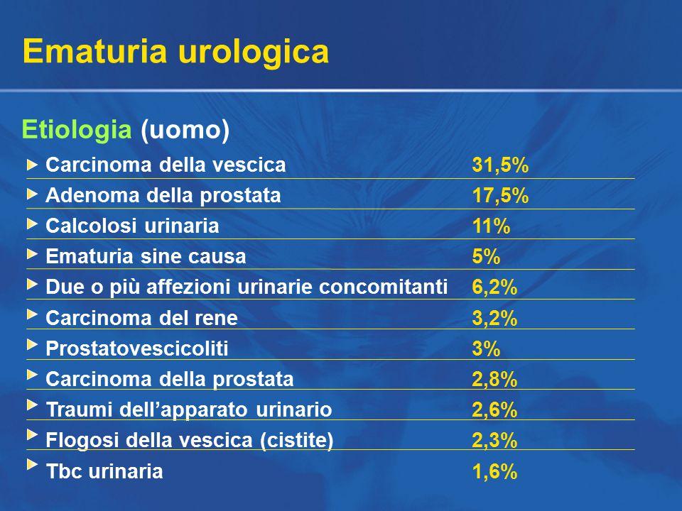 Ematuria urologica Etiologia (uomo) Carcinoma della vescica31,5% Adenoma della prostata17,5% Calcolosi urinaria11% Ematuria sine causa5% Due o più affezioni urinarie concomitanti6,2% Carcinoma del rene3,2% Prostatovescicoliti3% Carcinoma della prostata2,8% Traumi dell'apparato urinario2,6% Flogosi della vescica (cistite)2,3% Tbc urinaria1,6%