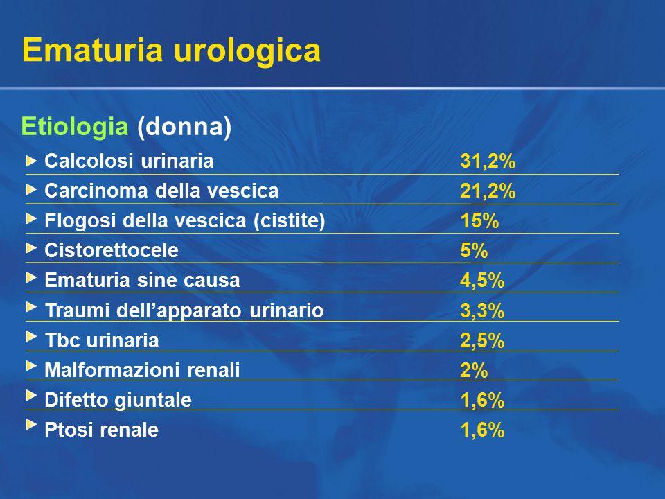 Ematuria urologica Etiologia (donna) Calcolosi urinaria31,2% Carcinoma della vescica21,2% Flogosi della vescica (cistite)15% Cistorettocele5% Ematuria sine causa4,5% Traumi dell'apparato urinario3,3% Tbc urinaria2,5% Malformazioni renali2% Difetto giuntale1,6% Ptosi renale1,6%