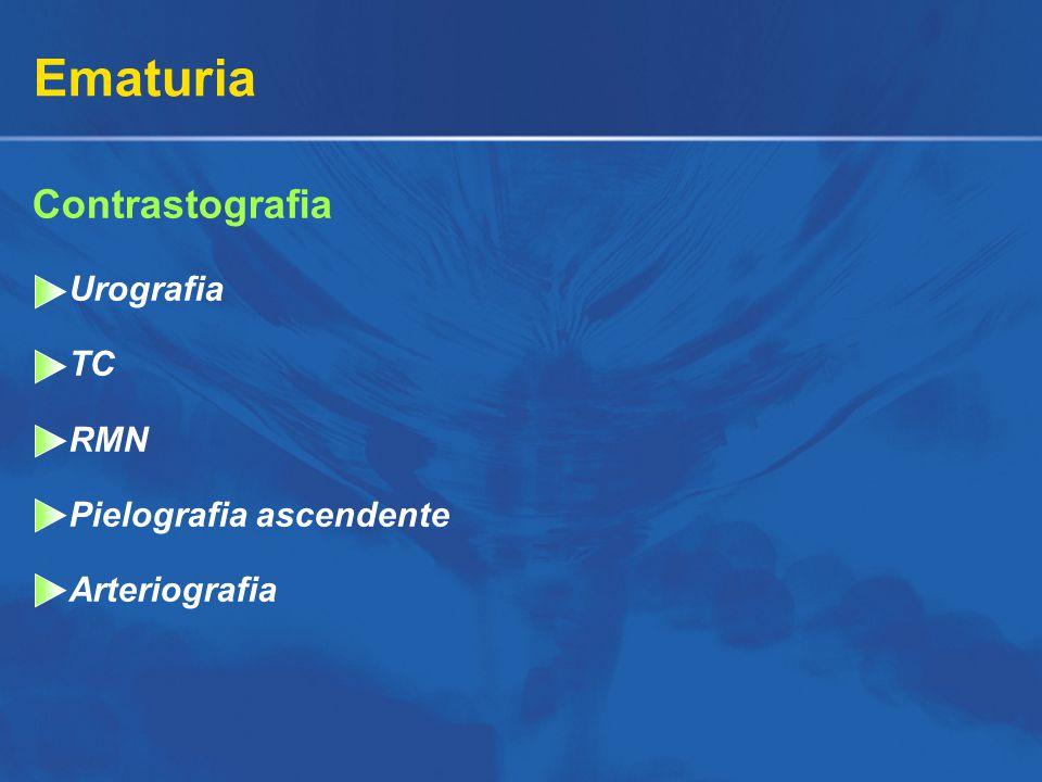 Ematuria Contrastografia Urografia TC RMN Pielografia ascendente Arteriografia