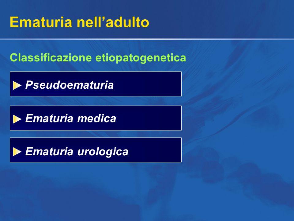 Ematuria nell'adulto Pseudoematuria Ematuria medica Ematuria urologica Classificazione etiopatogenetica