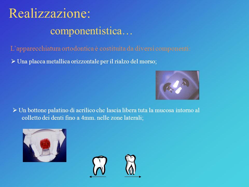 Realizzazione: componentistica… L'apparecchiatura ortodontica è costituita da diversi componenti:  Una placca metallica orizzontale per il rialzo del morso;  Un bottone palatino di acrilico che lascia libera tuta la mucosa intorno al colletto dei denti fino a 4mm.