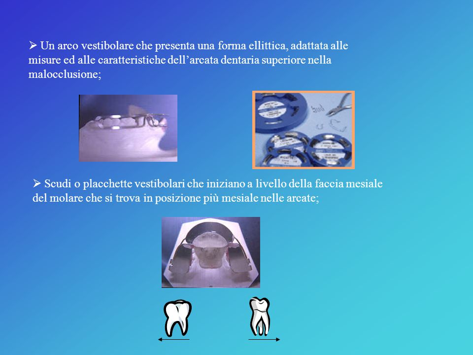  Un arco vestibolare che presenta una forma ellittica, adattata alle misure ed alle caratteristiche dell'arcata dentaria superiore nella malocclusione;  Scudi o placchette vestibolari che iniziano a livello della faccia mesiale del molare che si trova in posizione più mesiale nelle arcate;