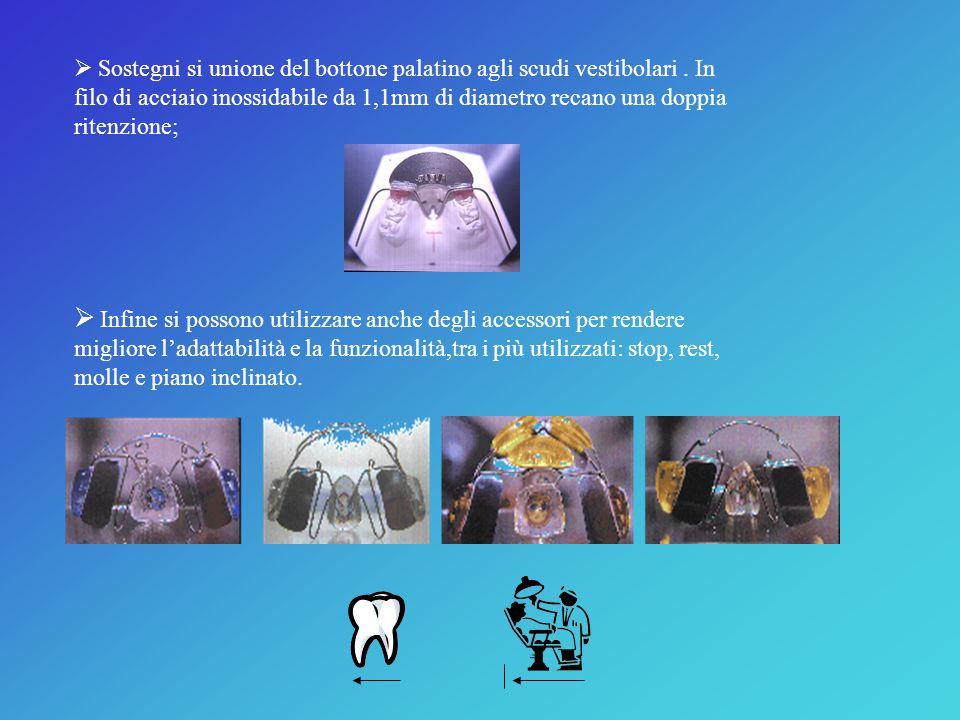  Un arco vestibolare che presenta una forma ellittica, adattata alle misure ed alle caratteristiche dell'arcata dentaria superiore nella malocclusion