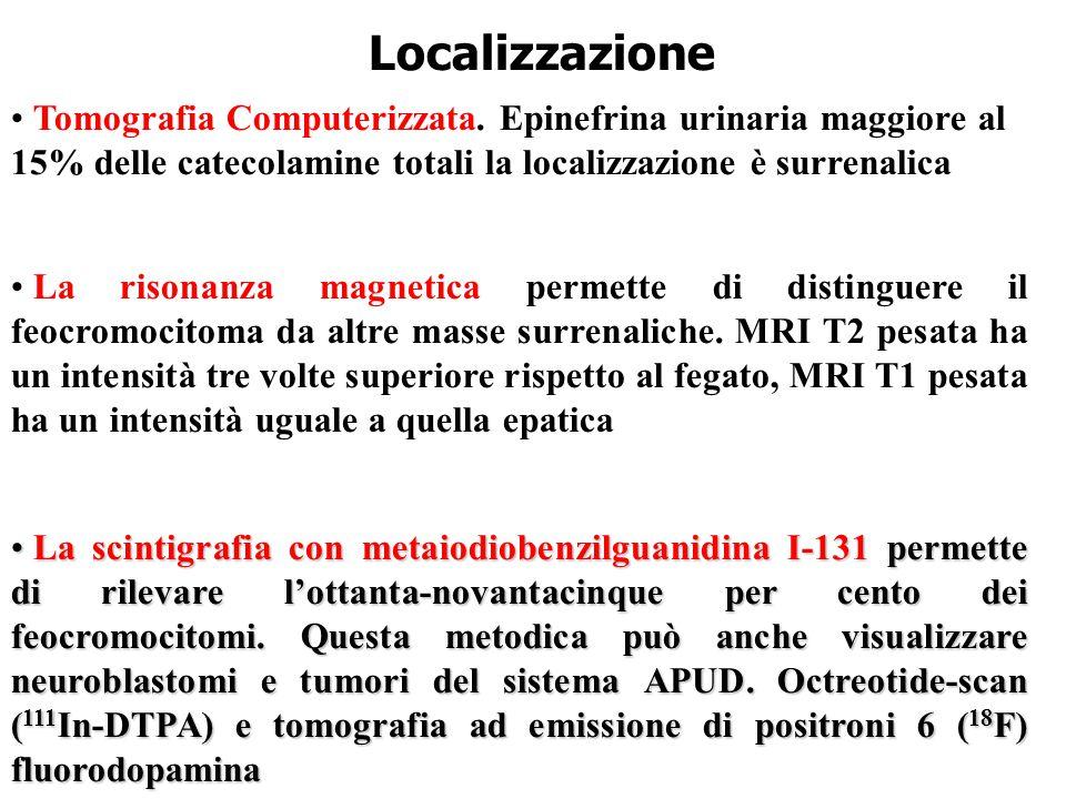 Localizzazione Tomografia Computerizzata.
