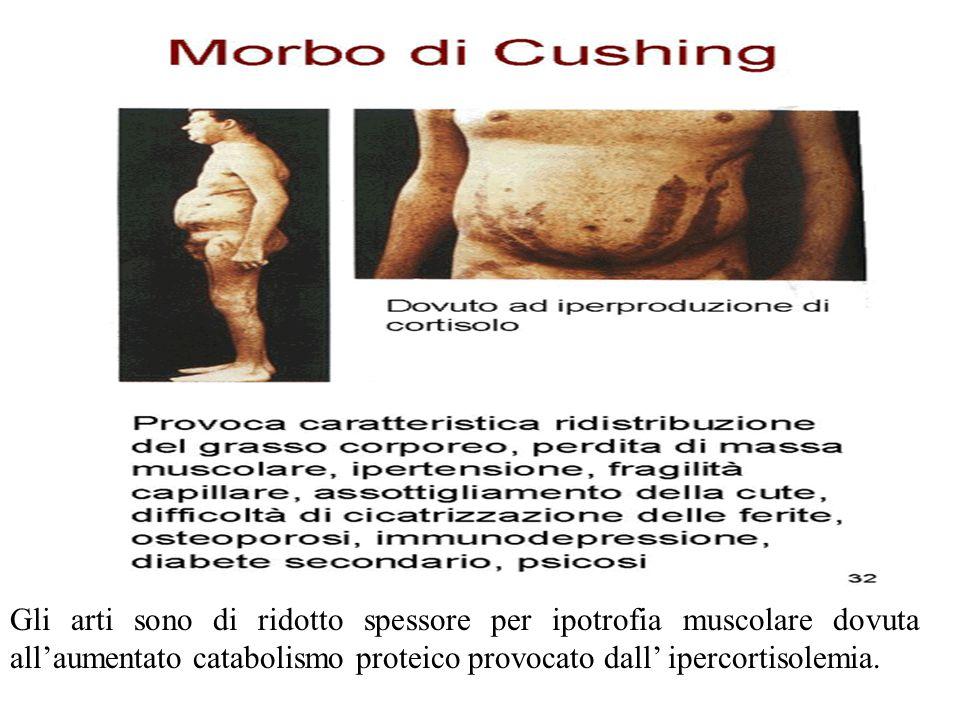 Gli arti sono di ridotto spessore per ipotrofia muscolare dovuta all'aumentato catabolismo proteico provocato dall' ipercortisolemia.