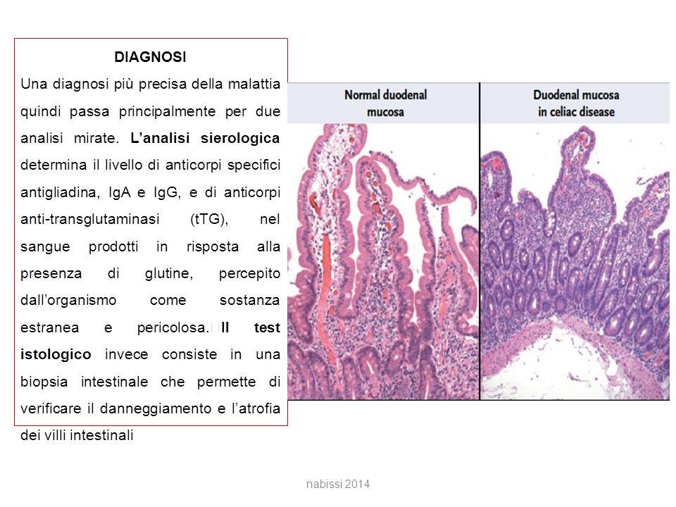 DIAGNOSI Una diagnosi più precisa della malattia quindi passa principalmente per due analisi mirate.