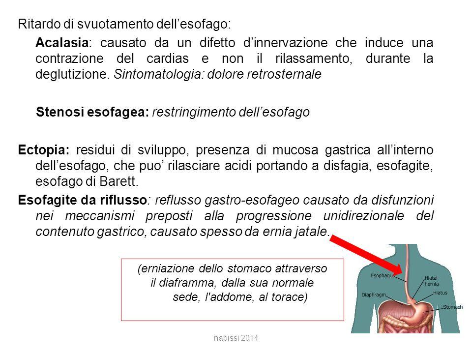 Ritardo di svuotamento dell'esofago: Acalasia: causato da un difetto d'innervazione che induce una contrazione del cardias e non il rilassamento, durante la deglutizione.