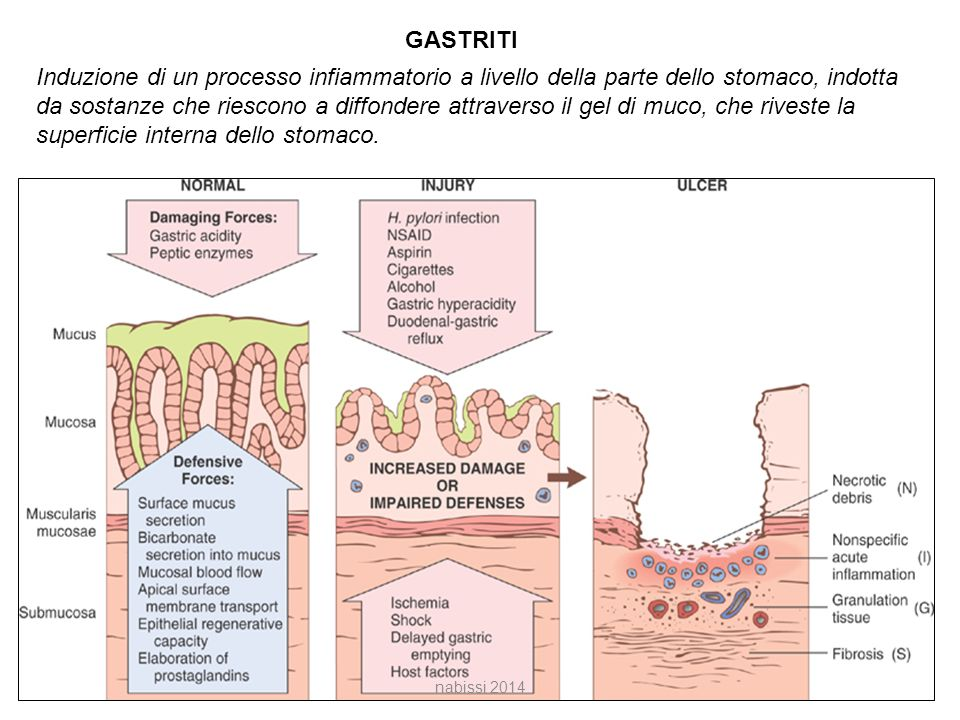 GASTRITI Induzione di un processo infiammatorio a livello della parte dello stomaco, indotta da sostanze che riescono a diffondere attraverso il gel di muco, che riveste la superficie interna dello stomaco.