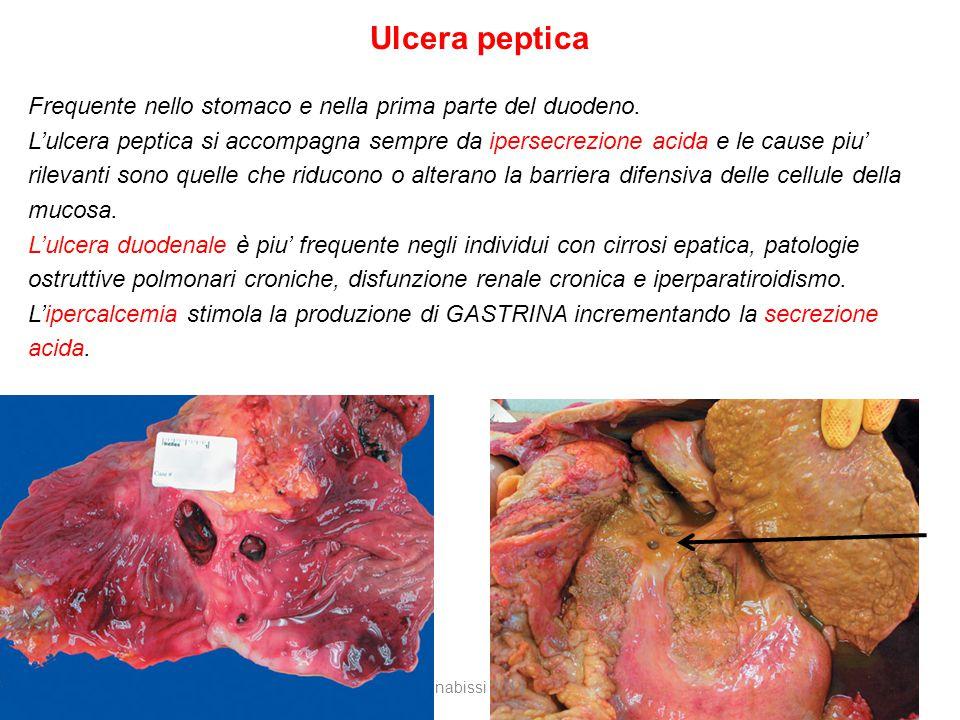 Ulcera peptica Frequente nello stomaco e nella prima parte del duodeno.