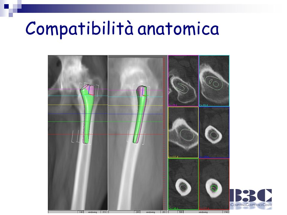 Compatibilità anatomica