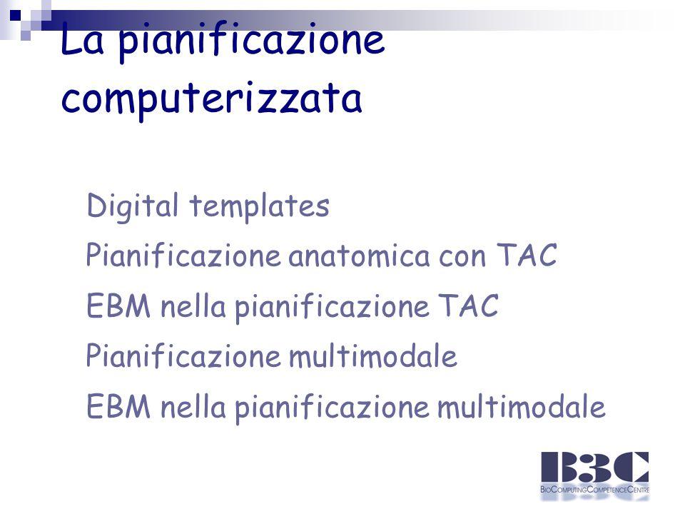 La pianificazione computerizzata Digital templates Pianificazione anatomica con TAC EBM nella pianificazione TAC Pianificazione multimodale EBM nella pianificazione multimodale