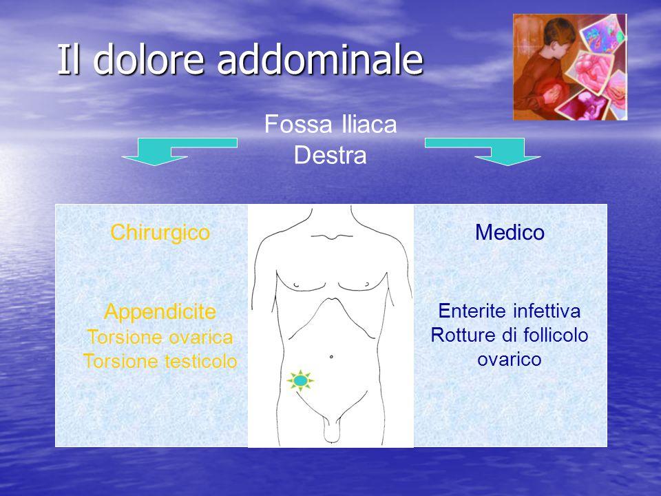 Il dolore addominale Fossa Iliaca Destra Chirurgico Appendicite Torsione ovarica Torsione testicolo Medico Enterite infettiva Rotture di follicolo ova