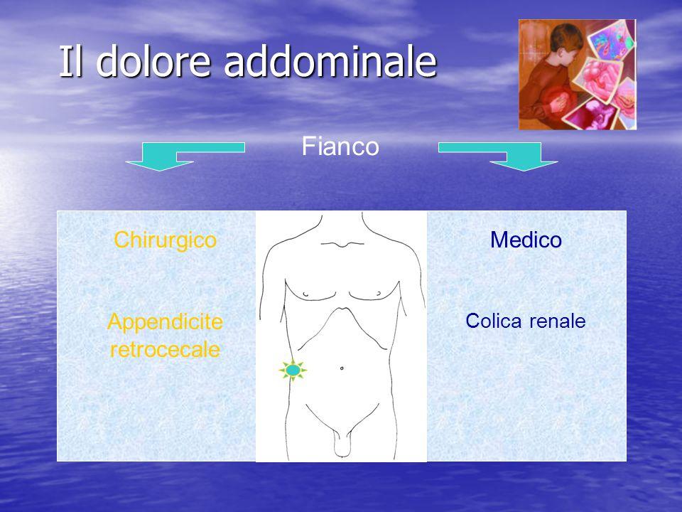 Il dolore addominale Fianco Chirurgico Appendicite retrocecale Medico Colica renale