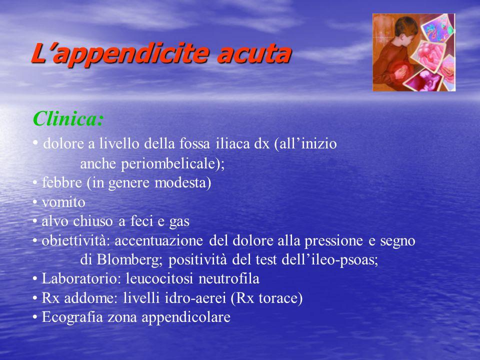 L'appendicite acuta Clinica: dolore a livello della fossa iliaca dx (all'inizio anche periombelicale); febbre (in genere modesta) vomito alvo chiuso a