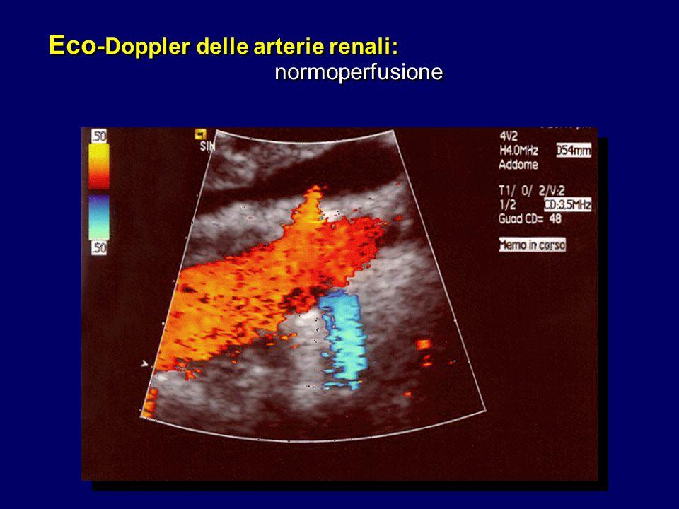 Eco -Doppler delle arterie renali: normoperfusione Eco -Doppler delle arterie renali: normoperfusione