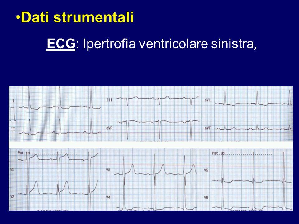 Dati strumentali ECG: Ipertrofia ventricolare sinistra,