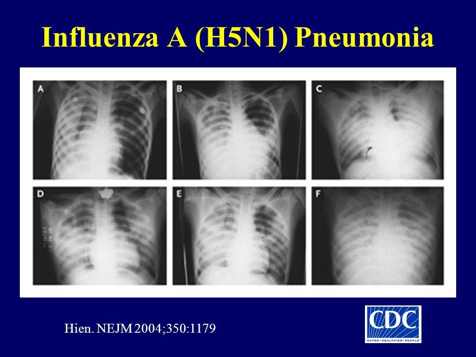 Influenza A (H5N1) Pneumonia Hien. NEJM 2004;350:1179