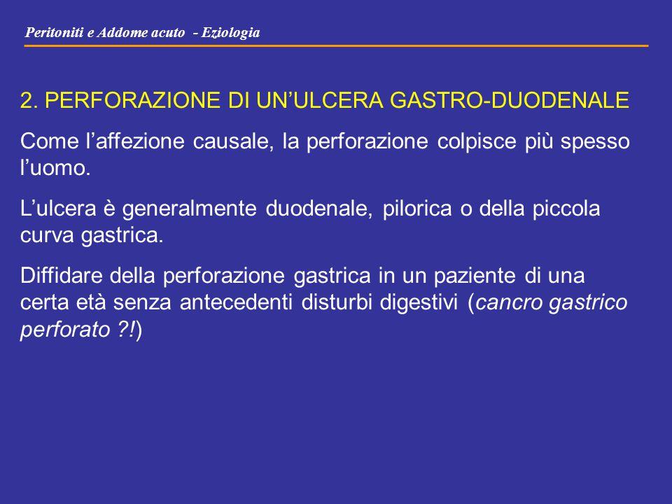 Peritoniti e Addome acuto - Eziologia 2. PERFORAZIONE DI UN'ULCERA GASTRO-DUODENALE Come l'affezione causale, la perforazione colpisce più spesso l'uo