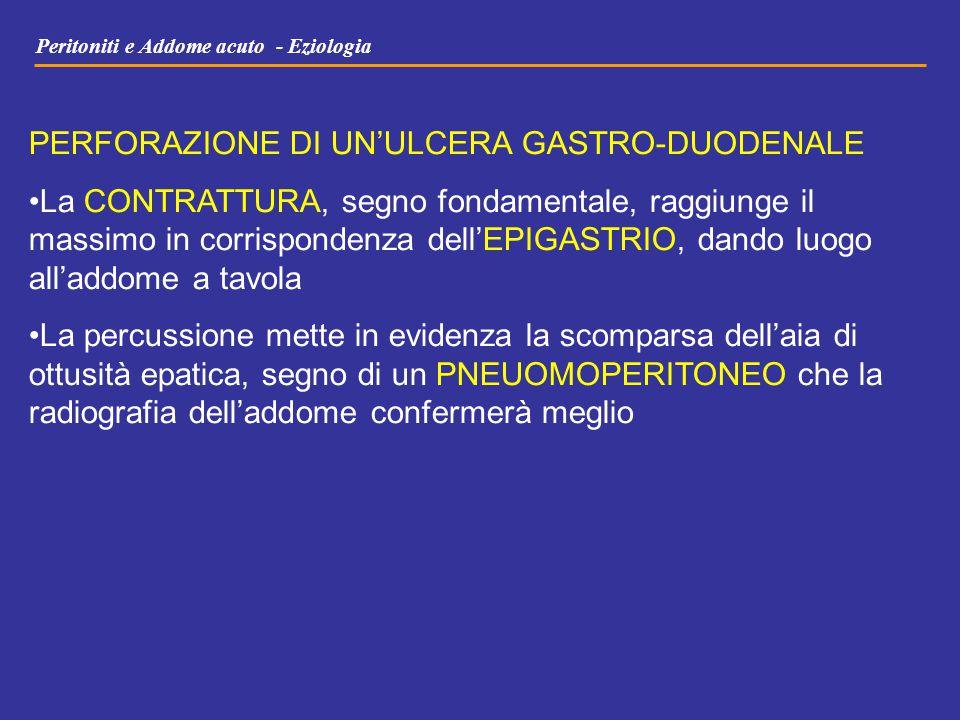 Peritoniti e Addome acuto - Eziologia PERFORAZIONE DI UN'ULCERA GASTRO-DUODENALE La CONTRATTURA, segno fondamentale, raggiunge il massimo in corrispon