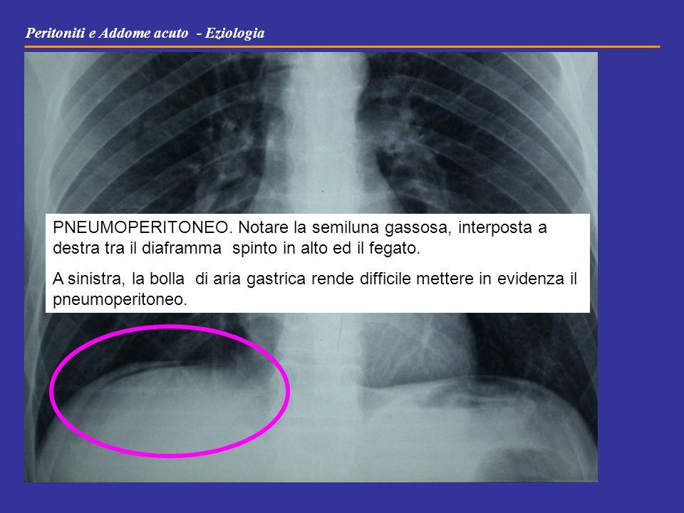 Peritoniti e Addome acuto - Eziologia PNEUMOPERITONEO. Notare la semiluna gassosa, interposta a destra tra il diaframma spinto in alto ed il fegato. A