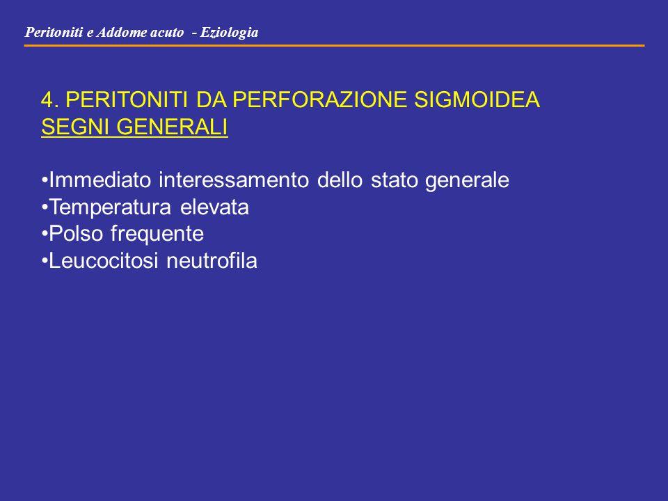Peritoniti e Addome acuto - Eziologia 4. PERITONITI DA PERFORAZIONE SIGMOIDEA SEGNI GENERALI Immediato interessamento dello stato generale Temperatura