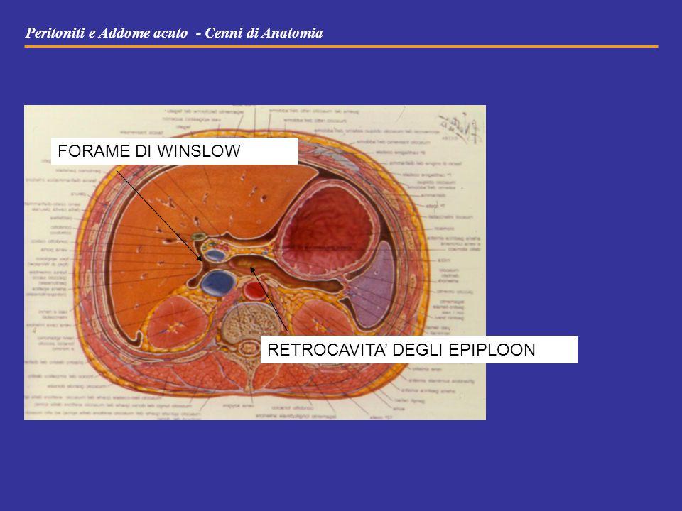 Peritoniti e Addome acuto - Cenni di Anatomia RETROCAVITA' DEGLI EPIPLOON FORAME DI WINSLOW