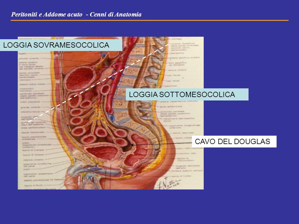 Peritoniti e Addome acuto - Cenni di Anatomia CAVO DEL DOUGLAS LOGGIA SOVRAMESOCOLICA LOGGIA SOTTOMESOCOLICA