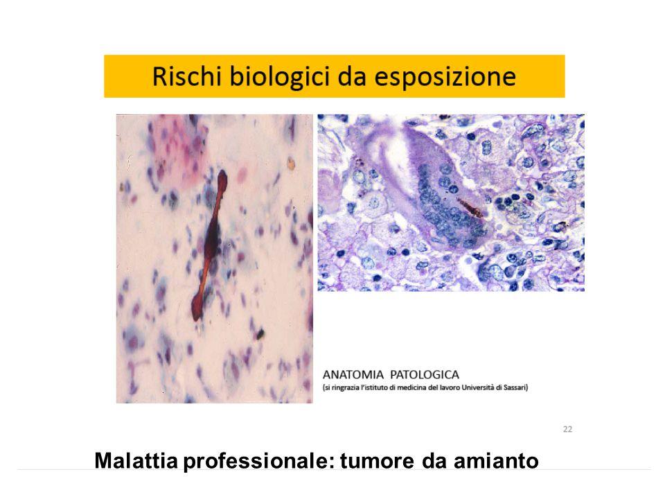Malattia professionale: tumore da amianto
