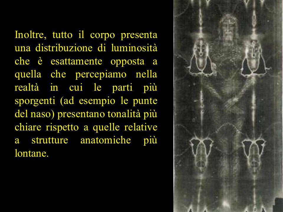 Inoltre, tutto il corpo presenta una distribuzione di luminosità che è esattamente opposta a quella che percepiamo nella realtà in cui le parti più sp