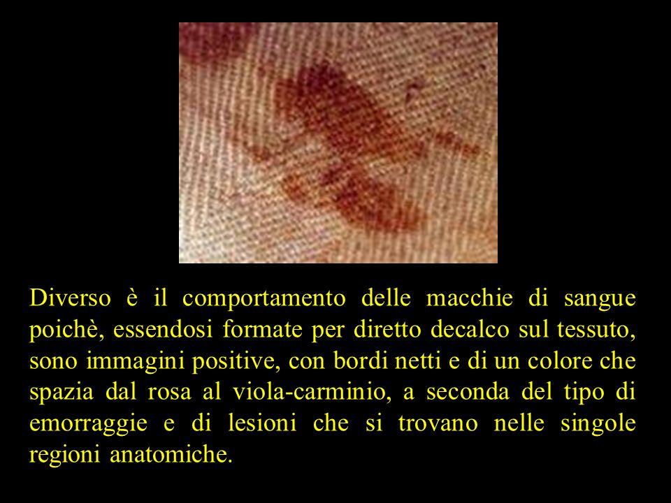 Diverso è il comportamento delle macchie di sangue poichè, essendosi formate per diretto decalco sul tessuto, sono immagini positive, con bordi netti