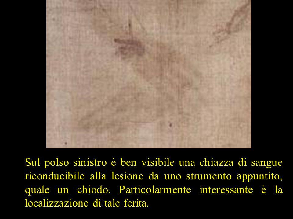 Sul polso sinistro è ben visibile una chiazza di sangue riconducibile alla lesione da uno strumento appuntito, quale un chiodo. Particolarmente intere