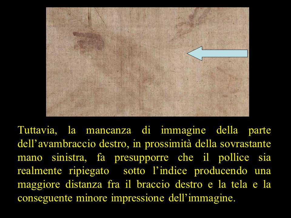 Tuttavia, la mancanza di immagine della parte dell'avambraccio destro, in prossimità della sovrastante mano sinistra, fa presupporre che il pollice si