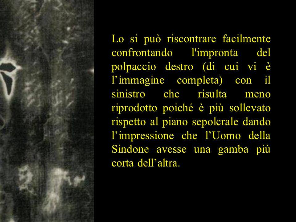 Lo si può riscontrare facilmente confrontando l'impronta del polpaccio destro (di cui vi è l'immagine completa) con il sinistro che risulta meno ripro