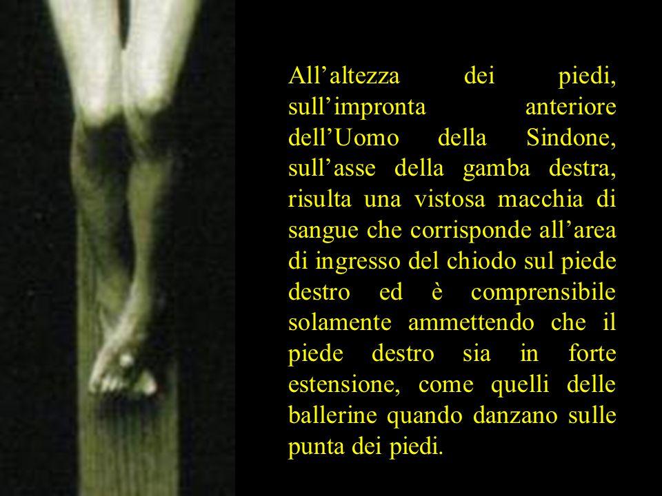 All'altezza dei piedi, sull'impronta anteriore dell'Uomo della Sindone, sull'asse della gamba destra, risulta una vistosa macchia di sangue che corris