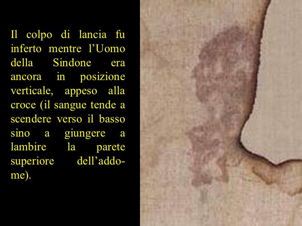 Il colpo di lancia fu inferto mentre l'Uomo della Sindone era ancora in posizione verticale, appeso alla croce (il sangue tende a scendere verso il ba