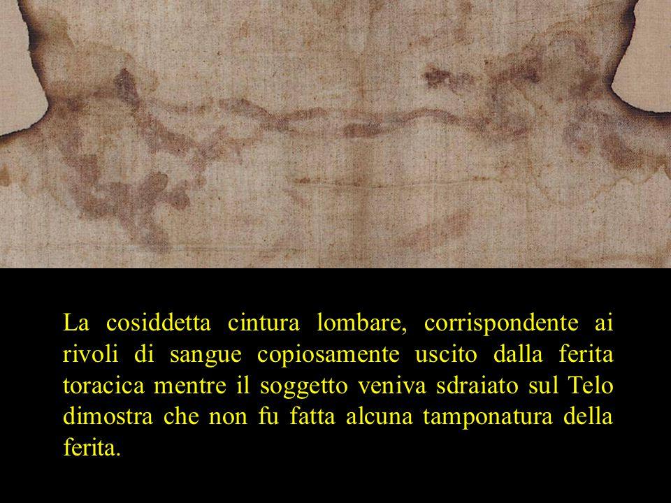 La cosiddetta cintura lombare, corrispondente ai rivoli di sangue copiosamente uscito dalla ferita toracica mentre il soggetto veniva sdraiato sul Tel