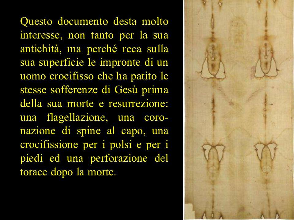 Questo documento desta molto interesse, non tanto per la sua antichità, ma perché reca sulla sua superficie le impronte di un uomo crocifisso che ha p