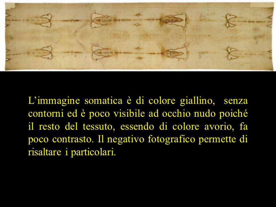 L'immagine somatica è di colore giallino, senza contorni ed è poco visibile ad occhio nudo poiché il resto del tessuto, essendo di colore avorio, fa p