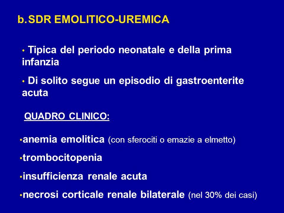 b.SDR EMOLITICO-UREMICA Tipica del periodo neonatale e della prima infanzia Di solito segue un episodio di gastroenterite acuta anemia emolitica (con sferociti o emazie a elmetto) trombocitopenia insufficienza renale acuta necrosi corticale renale bilaterale (nel 30% dei casi) QUADRO CLINICO: