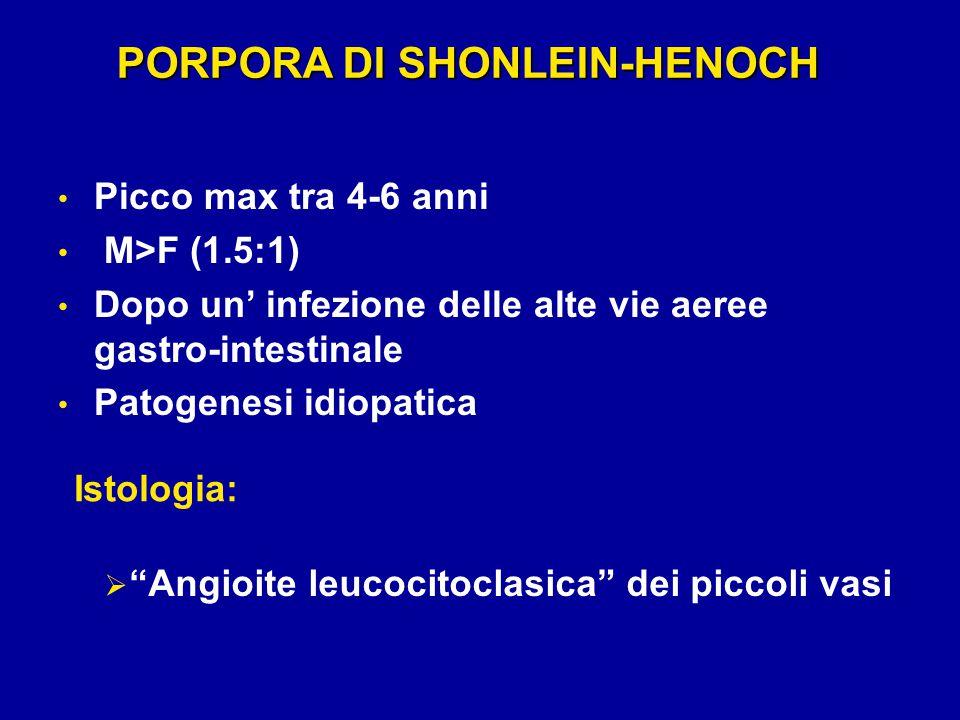 Picco max tra 4-6 anni M>F (1.5:1) Dopo un' infezione delle alte vie aeree gastro-intestinale Patogenesi idiopatica PORPORA DI SHONLEIN-HENOCH  Angioite leucocitoclasica dei piccoli vasi Istologia: